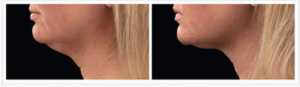 before-and-after-coolsculpting-submental-fullness-leesburg-va-avie-medspa