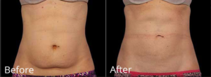 Before and After picture of CoolSculpting in Leesburg, VA at AVIE! Medspa and Laser Center.
