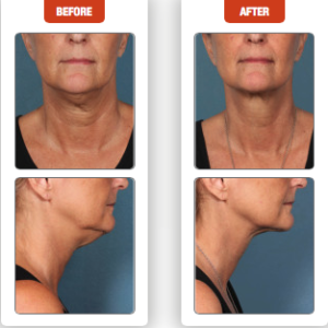 "Kybella at AVIE! Medspa in Leesburg, VA eliminates unwanted fat beneath the chin and along the jawline, also known as the ""double chin""."