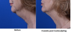 Achieve a youthful contour to your neck at AVIE! MedSpa in Leesburg, VA.