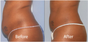 before-after-2-body-contouring-avie-med-spa-leesburg