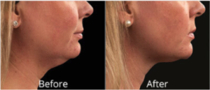 body-contouring-before-after-avie-medspa-leesburg
