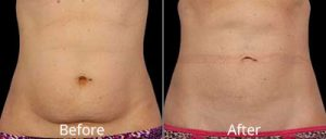 CoolSculpting Before & After Photos in Leesburg, Virginia at Avie MedSpa