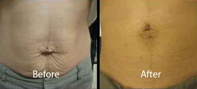 skintyte-before-after-leesburg-virginia-avie-body-contouring-thumbnail-1
