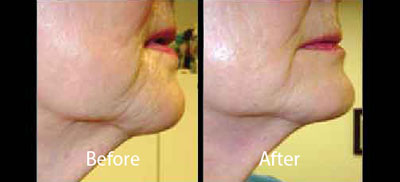 skintyte-before-after-leesburg-virginia-avie-body-contouring-thumbnail-2